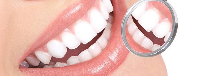 parodontologie maladies parodontales dentiste lot et garonne. Black Bedroom Furniture Sets. Home Design Ideas